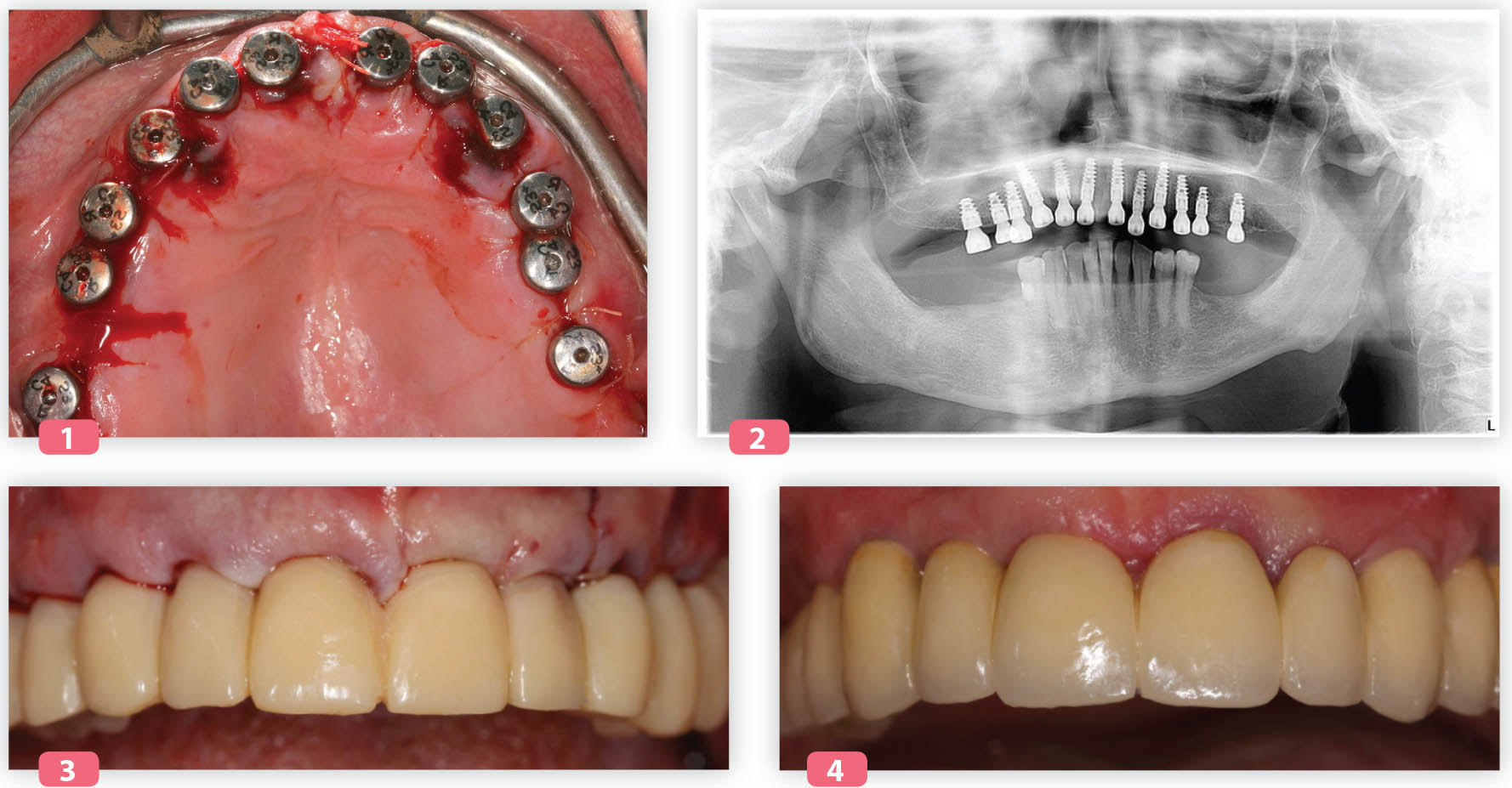 L'implant Naturactis