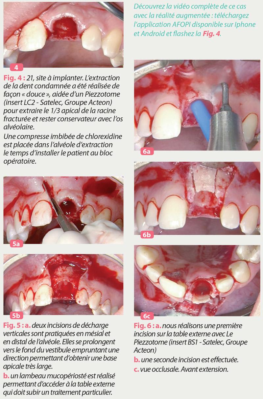 changer-le-paradigme-secteurs-esthetiques-maxillaires