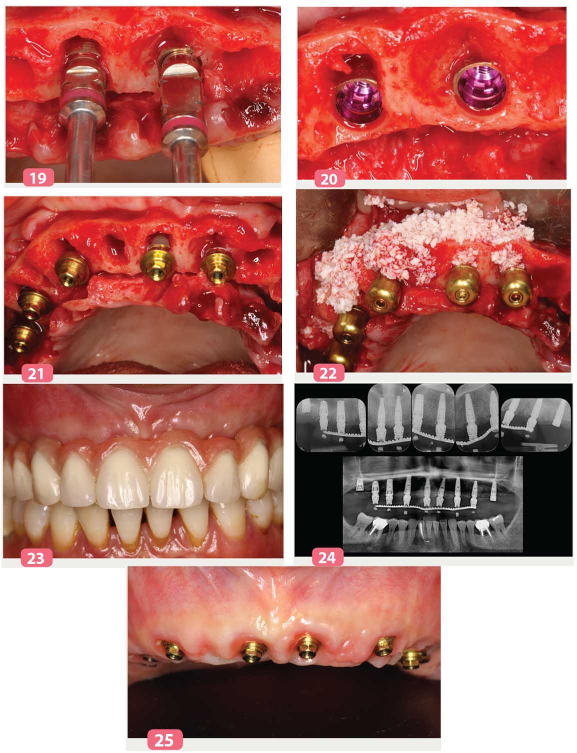implants C1 et V3