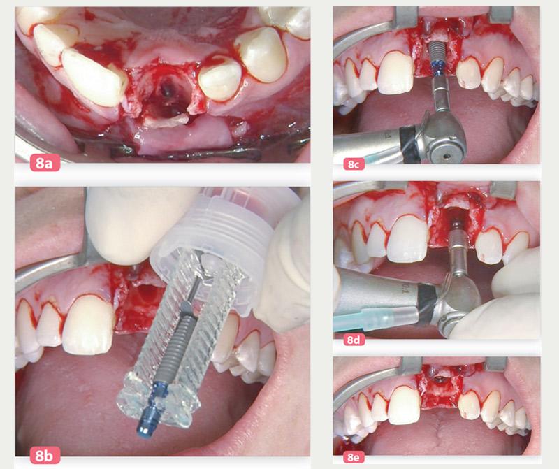 position-distalee-de-implant