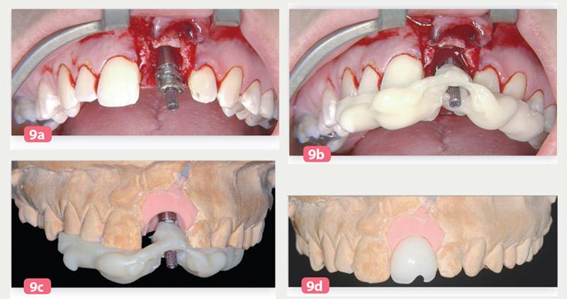 transfert-axe-implantaire-vestibulaire