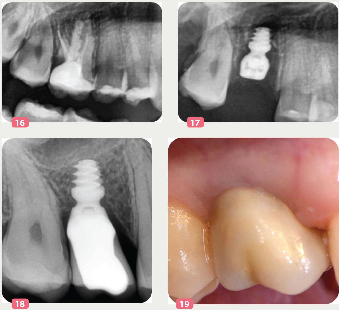 vue de la molaire à extraire