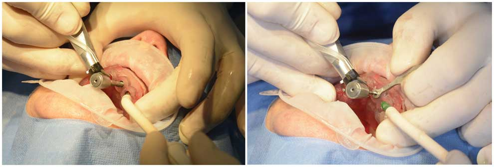 versus-l'implantologie-guidée