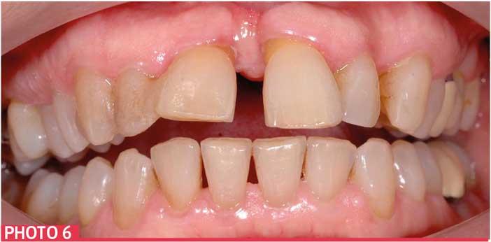 Soins-bucco-dentaires