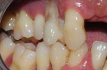Terrain-de-parodontite