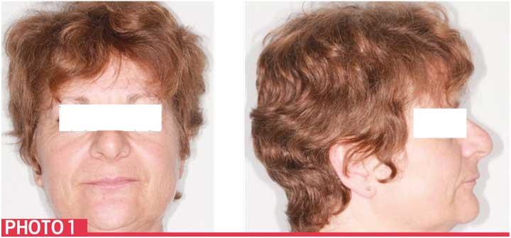 risque-parodontale