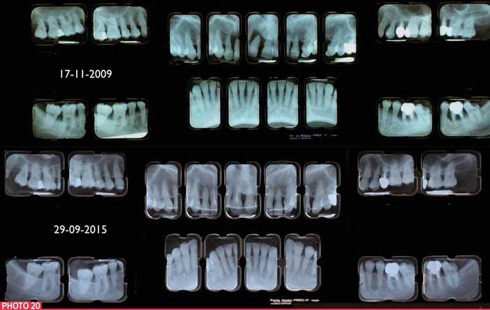 signe-de-maladie-parodontale