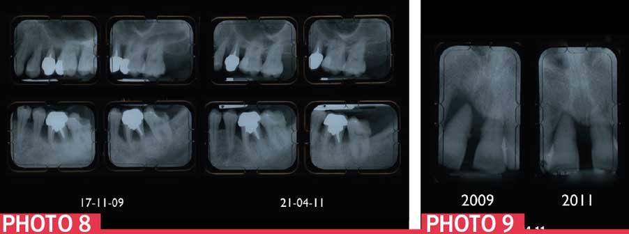traitement-parodontale