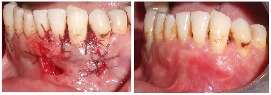 Cicatrisation-apres-la-chirurgie