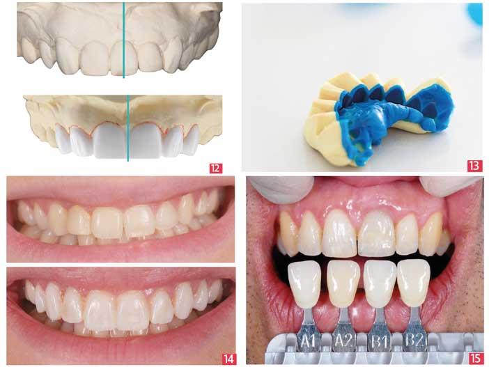 les-volumes-des-dents