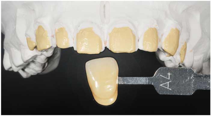 tissus-dentaires