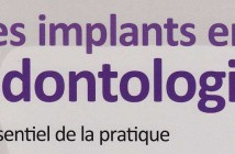 Les-implants-en-odontologie