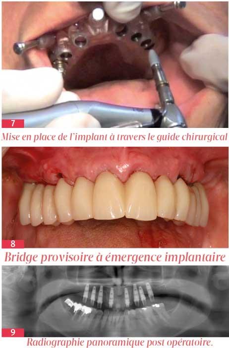 Mise-en-place-de-l'implant