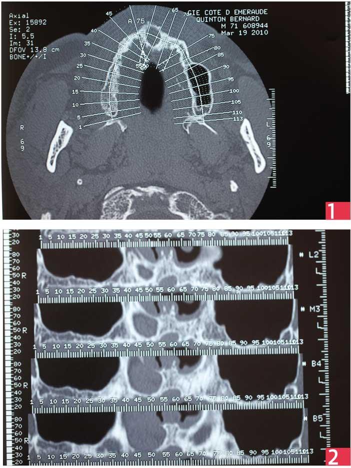 coupes-du-scanner-pré-opératoire