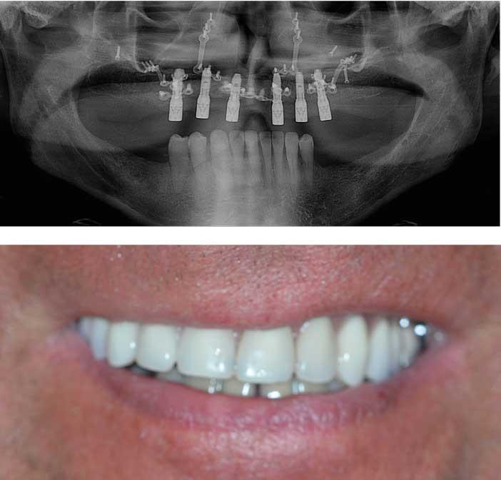 stabilité-d'un-implant