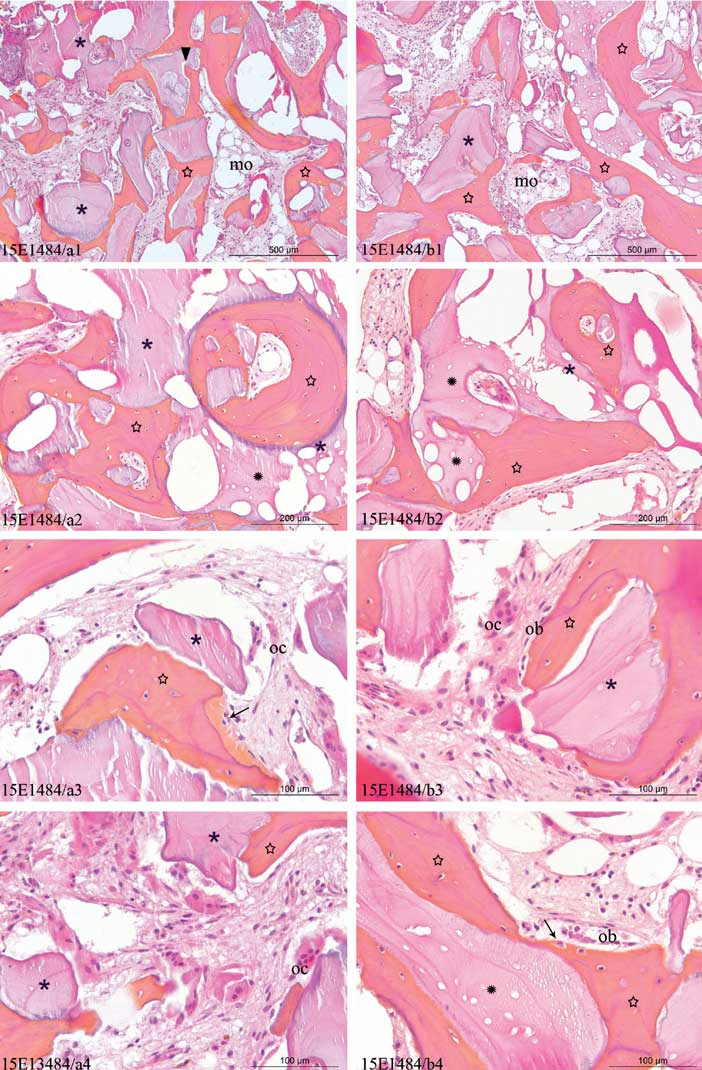 Planche-histologique-d'une-biopsie-de-sinus