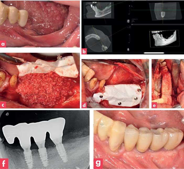 cas-de-régénération-osseuse-guidée