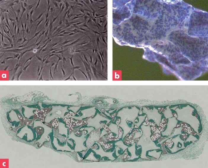 cellules-souches-mésenchymateuses