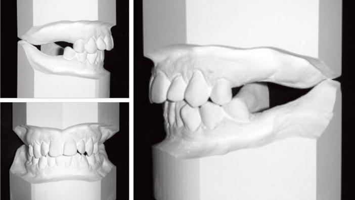 bilan-orthodontique-initial