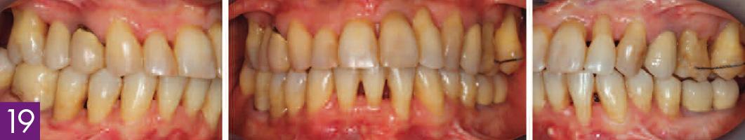 couronnes-dusage-sur-dents