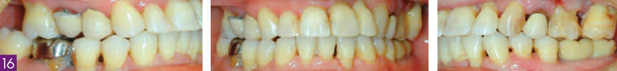 couronnes-transitoires-sur-implants