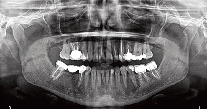 radiographie-panoramique-initiale