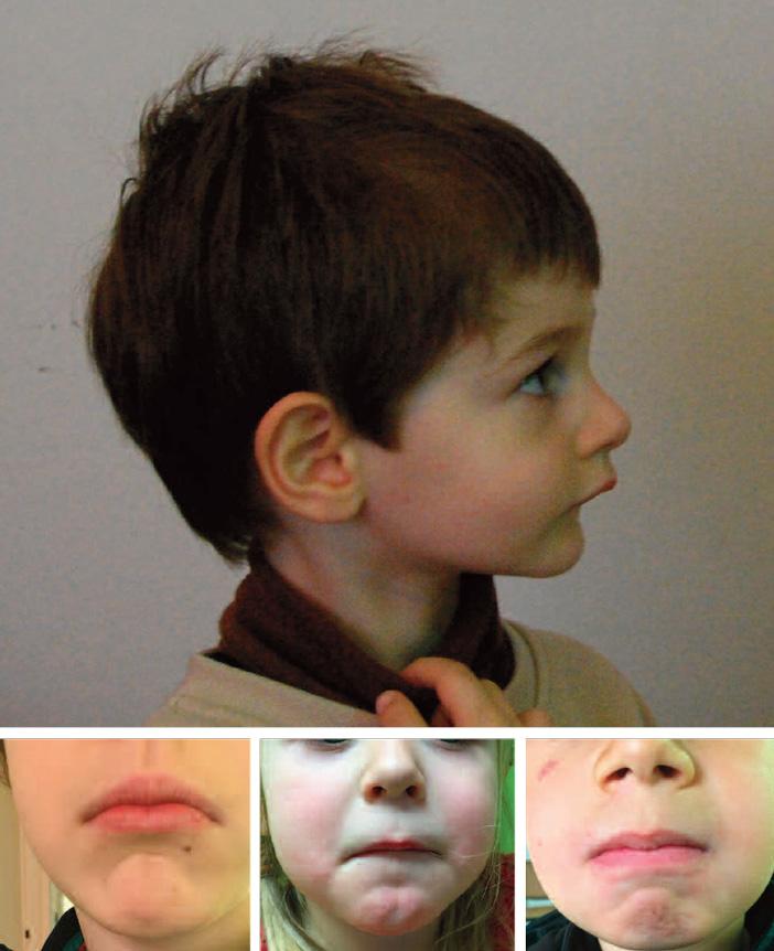 les-traitements-orthodontiques