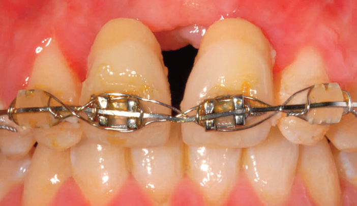 traitement-orthodontique
