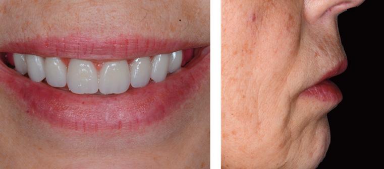 dents-anterieures-maxillaires