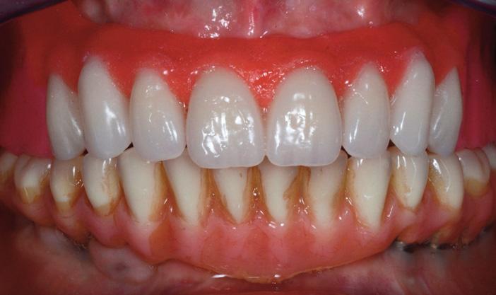 essayage-des-six-dents