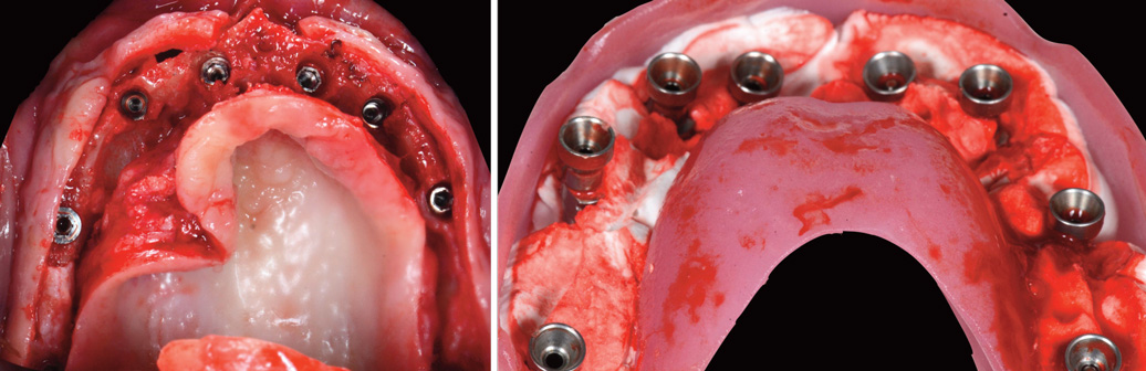 implants-dans-le-volume-osseux