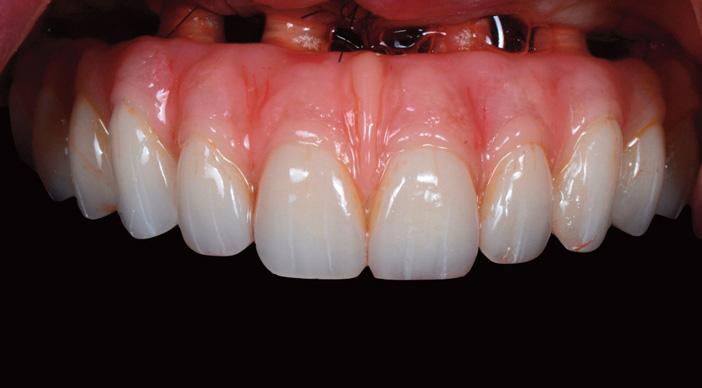 prothese-provisoire-en-bouche