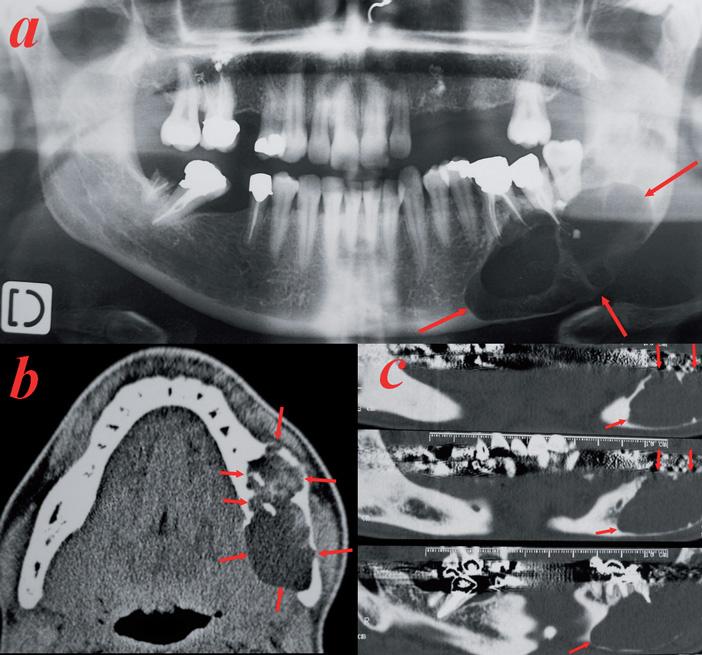 Tumeur-multikystique-mandibulaire