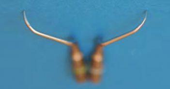 Esthetique-et-parodontites