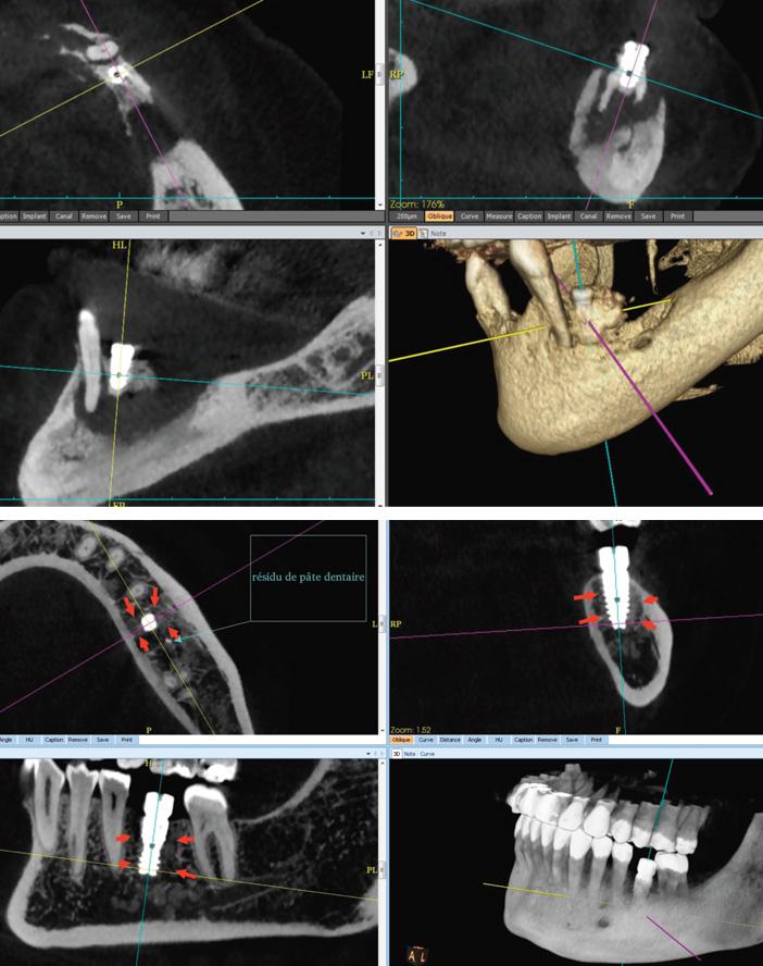 implant-mal-osteo-integre-cercle-de-fibrose