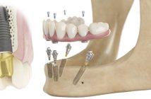 s-solutions-pour-tout-le-processus-de-traitement-implantaire