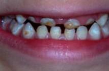 Odontologie-Pédiatrique
