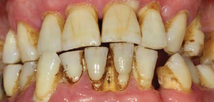 parodontite ulcero necrotique