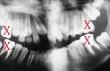Conserver-ou-extraire-une-dent