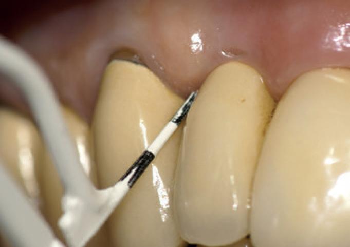 maintenance en implantologie
