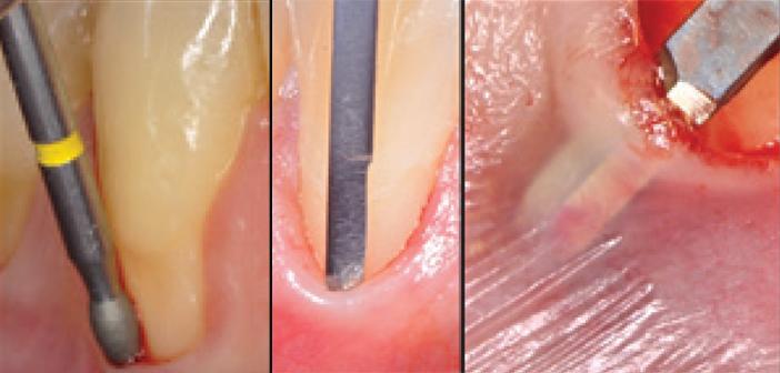 approche combin u00e9e de stabilisation en chirurgie parodontale