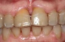 Parodontie-jusqu-ou