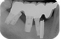 Echecs-implantaires
