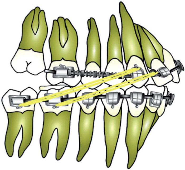 DAC-en-denture-adolescente-et-adulte-jeune-pendant-distalisation