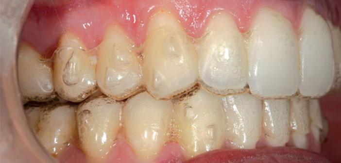 orthodontie invisible adulte