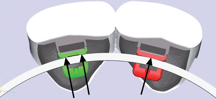 nouveaux-brackets-en-vert-wet-controle-des-rotations