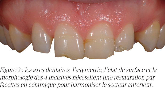les-axes-dentaires