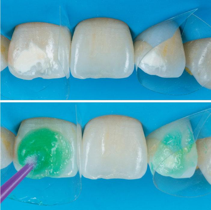 protection-des-dents-voisines