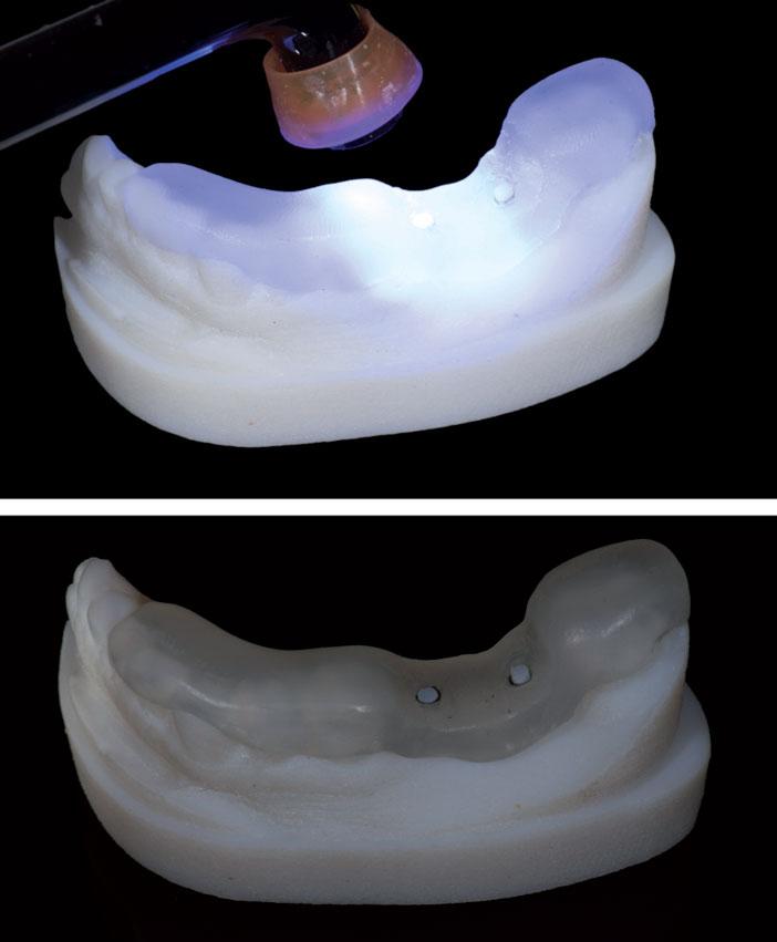 Les-dents-sont-recouvertes-de-composite-en-englobant-les-tubes