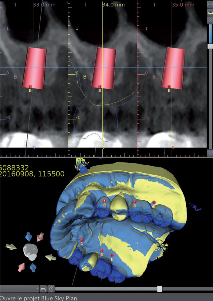 Positionnement-implantaire-issu-d-un-scannage-du-wax-up-de-laboratoire